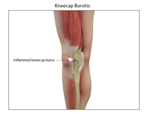 Kneecap bursitis sydney nsw prepatellar bursitis treatment bursitis ccuart Image collections