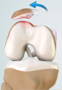 Patellar Dislocation/Patellofemoral Dislocation